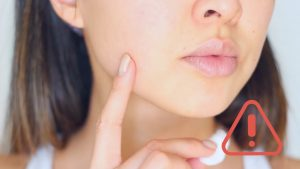 Voici l'astuce qui vous sauve la mise lorsque vous avez un bouton qui entache votre visage!