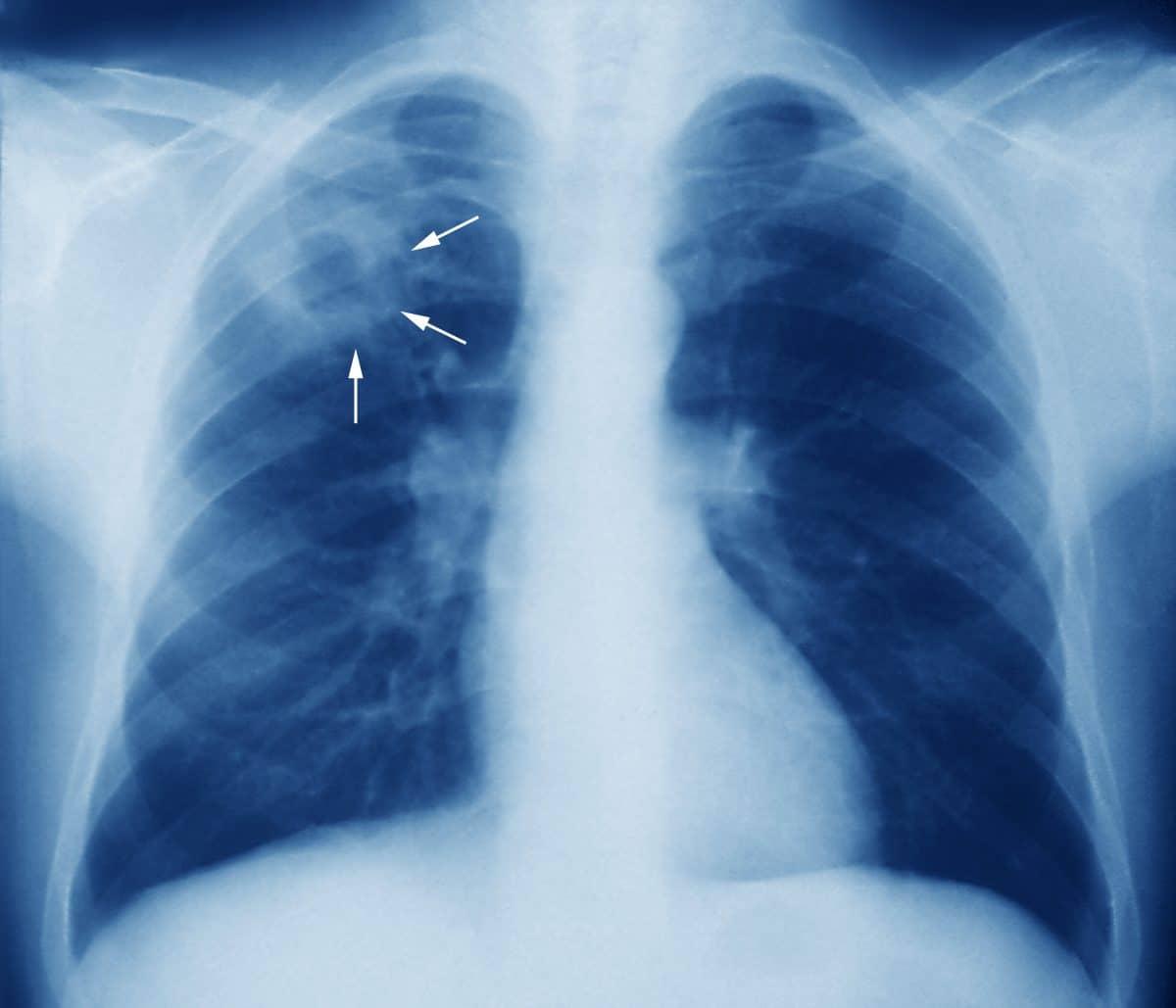 Des traitements plus courts pour lutter contre les formes les plus graves de tuberculose!